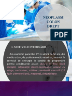 Neoplasm Colon Drept