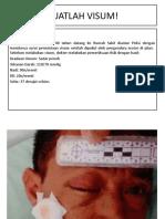 SKENARIO VISUM UNTUK MAHASISWA (1).pptx