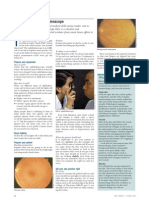 How to use ophthalmoscope