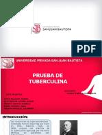 Prueba de Tuberculina Ppt