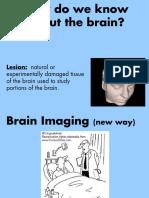 brainimaging