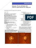 86-Normal-Low-Tension-Glaucoma.pdf