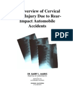 Facet Joint Injuries From Car Accidents