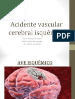 Acidente-Vascular-Cerebral-aula