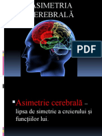 Asimetria cerebrala