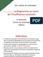 ECG-dans-l'insuffisance-coronarienne