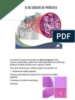 cancer de prostata pdf