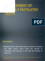 _management-of-mutilated-teeth- (1) (1)-1.ppt