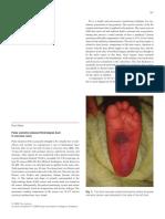ANZ Journal of Surgery burns gen sens