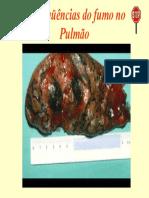 Conseqüências do fumo no Pulmão