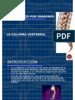 RX COLUMNA VERTEBRAL 2020 I.pdf