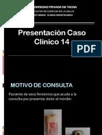 CASO CLINICO PZ 14 NISSIN