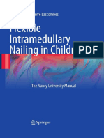 Flexible Intramedullary Nailing in Children the Nancy University Manual
