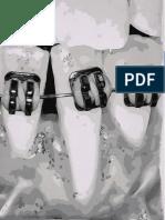 A Ortodontia e o periodonto - coisas que devemos saber.pdf