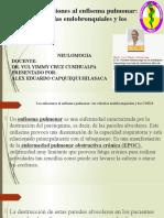Alex Eduardo Capquequi Hilasaca - Enfisema