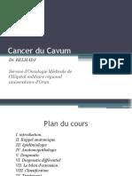Cancer du Cavum- Dr Belhadj