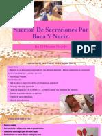 Succión De Secreciones orofaringea