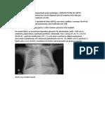 caso clinico choque cardiogenico