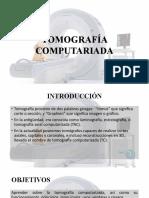 TOMOGRAFÍA COMPUTARIADA
