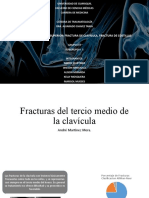 SUBGRUPO 3 - FRACTURAS DE CLAVICULA Y COSTILLAS final