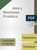 Hiperplasia y Neoplasias Prostática.pptx
