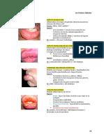 patho oral fiche 6