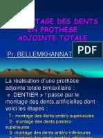 LE MONTAGE DES DENTS EN PROTHESE ADJOINTE TOTALE. Pr. BELLEMKHANNATE Samira