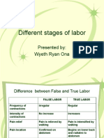 DIFF. STAGES OF LABOR