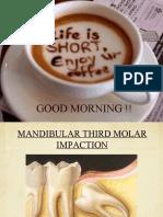 3rd molar impaction