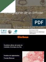 DIUE2016m1-Cirrhose_Ch-Aube