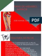 FRACTURAS_DE_MIEMBRO_INFERIOR