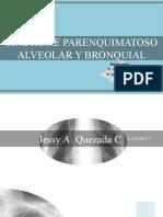 1-Sx Parenquimatoso Alveolar y Bronquial (1)