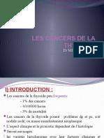 Cancer Thyroide4