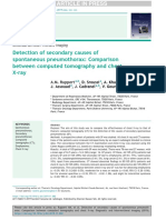 Detection of Secondary Causes of Spontaneous Pneumothorax Comparison Between Computed Tomography and Chest X-ray
