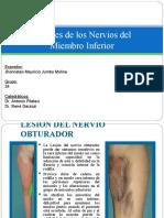 Lesiones de los Nervios del M.I