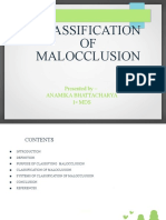 CLASSIFICATION OF MALOCCLUSION dr anamika