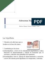 Adenoma%20Hipofisiario[1]