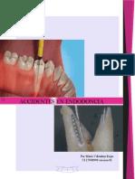 accidentes endodontico