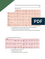 G1A118093 M Rizky Devandy Kuis EKG