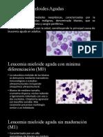 Leucemias Mieloides Agudas y cronicas