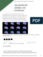 prueba de sangre diagnostica el Alzheimer
