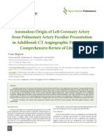 Anomalous Origin of Left Coronary Artery from Pulmonary Artery Peculiar Presentation in Adulthood