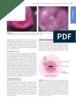 VPH - Ginecología de Williams