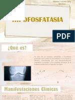 Hipofosfatasia