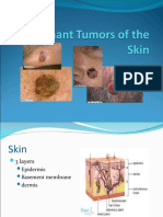 Malignant Tumors of the Skin