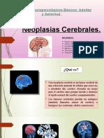 Neoplasias cerebrales SSSG