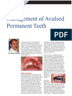 Management of Avulsed