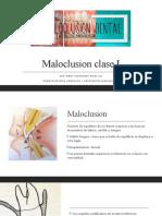 maloclusion clase I (1)