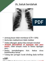 pdf-mejoramiento-de-subrasantepptx_compress