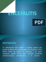 ENCEFALITIS PRESENTACION